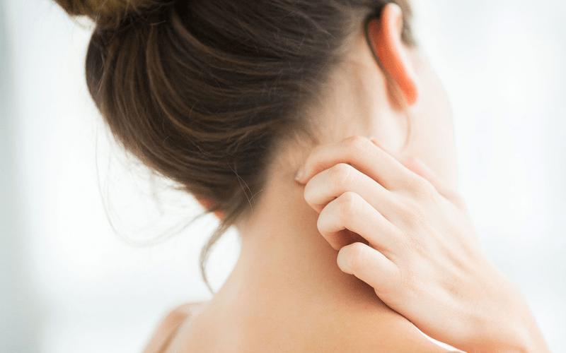 atopski dermatit